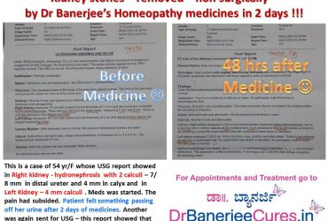 Dr Banerjee Cases Before and After; Kidney Stone cure